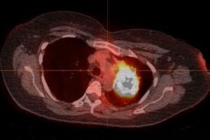 Most cases of never-smokers' lung cancer treatable with mutation-targeting drugs